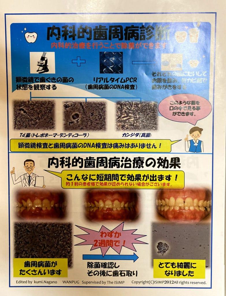 歯周病のPCR検査